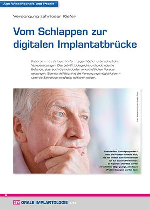 Dr. Jan H. Koch (Freising), Fotomaterial: Dr. Claudio Cacaci, Zahntechnik ZTM H.-J. Lotz (Weikersheim)