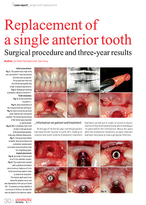 Replacement of a single anterior tooth – Surgical prodedure and three-year results