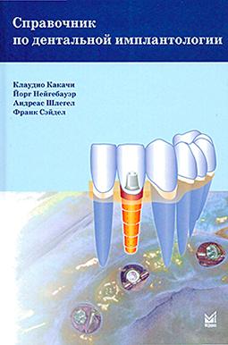 Checkliste Orale Implantologie Fachbuch russisch
