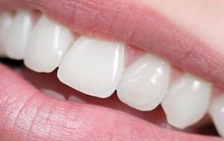 Zahnimplantat Erfahrungen