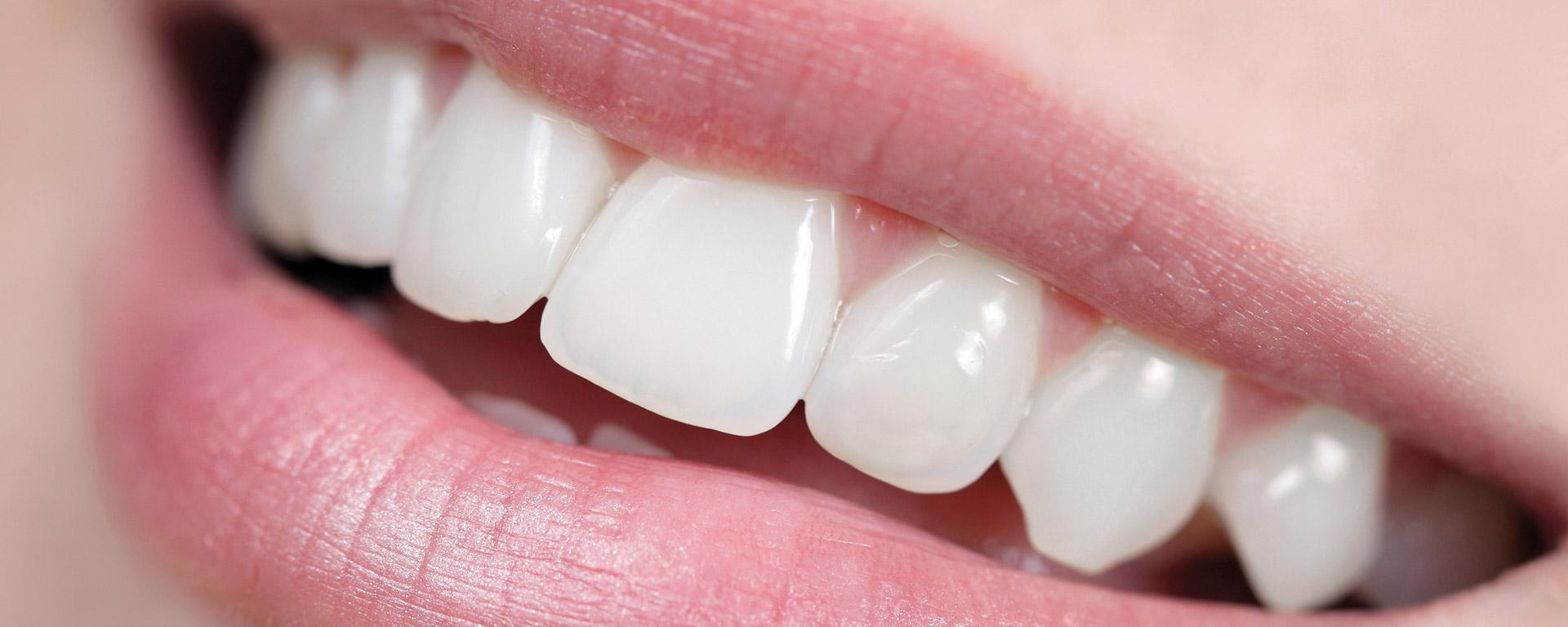 Zahnimplantate München