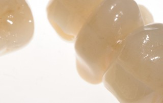 Prothetik Zahnarztpraxis Dr. Cacaci & Dr. Randelzhofer
